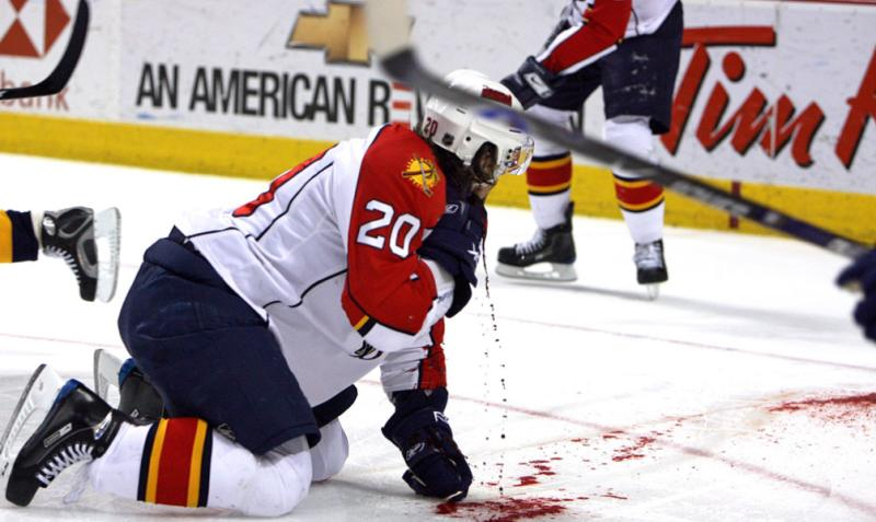 Hockey Goalie Throat Slit 34